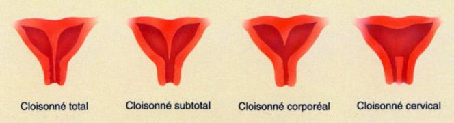 Cure de cloison utérine