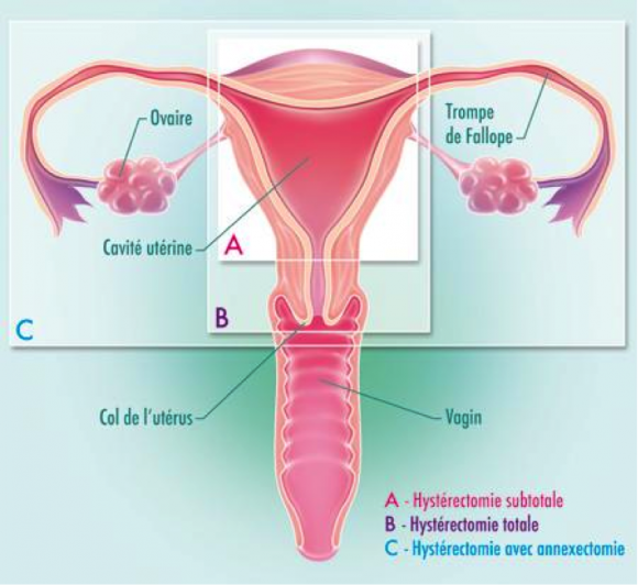 Removal of the uterus (hysterectomy)   Dr Velemir, chirurgien ...