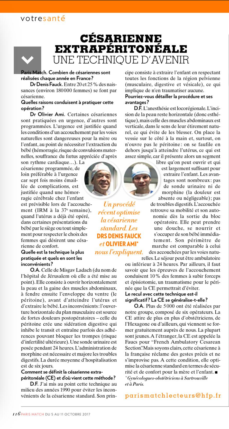 Césarienne extrapéritonéale : une technique d'avenir