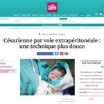 Top Santé : Césarienne par voie extrapéritonéale : une technique plus douce